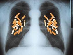 Вакцина против курения появится в продаже через 5 лет