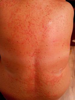 Алергия!!!