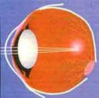 «Бионический глаз» позволит слепым видеть