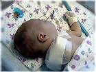 Двухмесячная девочка из-за халатности врачей лишилась руки