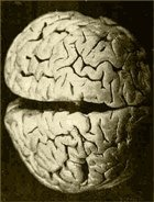 Бойтесь головной боли! От неё «растворяется» мозг!