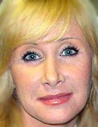 Оксана Пушкина требует от врача-косметолога миллион долларов за испорченное лицо