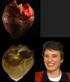 Американские ученые создали живое сердце из мертвого