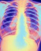 Мужчины более склонны к туберкулезу