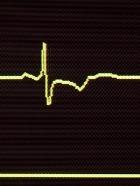Постой, сердце, не стучи!