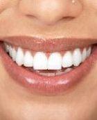 Цвет зубов поведает о наличии проблем со здоровьем