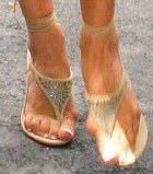 Любовь к каблукам обходится дорого