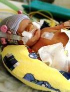 Немецкие врачи не дали умереть 275-граммовому младенцу