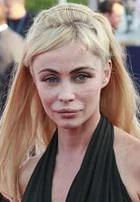 Пластические операции изуродовали французскую актрису