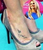 У Бритни Спирс диагностировали псориаз