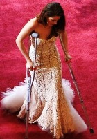 Кристен Стюарт пришла на «Оскар» на костылях