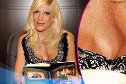 Актриса Тори Спеллинг не может решиться поменять «просроченную» грудь