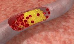 Повышенный холестерин в крови не связан с продолжительностью жизни