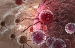 Рак легких может «затаиться» в организме на 20 лет