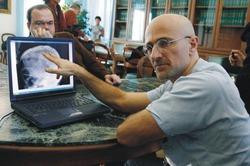 Российский программист дал согласие на пересадку головы на другое тело