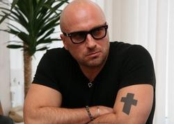 Почему Дмитрий Нагиев не снимает очки?