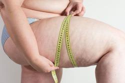 Большинство людей не в силах победить ожирение