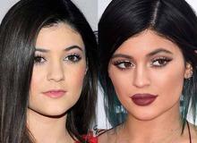 Кайли Дженнер до и после увеличения губ фото