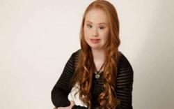 Австралийская девушка с синдромом Дауна хочет стать моделью