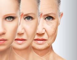 Стресс заставляет женщин быстрее стареть
