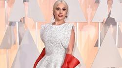 Леди Гага ляжет под нож перед свадьбой