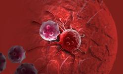 Настоящая причина рака: образ жизни и экология ни при чем