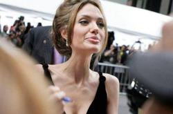 Врачи прокомментировали смертельный диагноз Анджелины Джоли