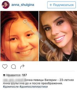 Дочка Валерии прокомментировала новость о пластике лица