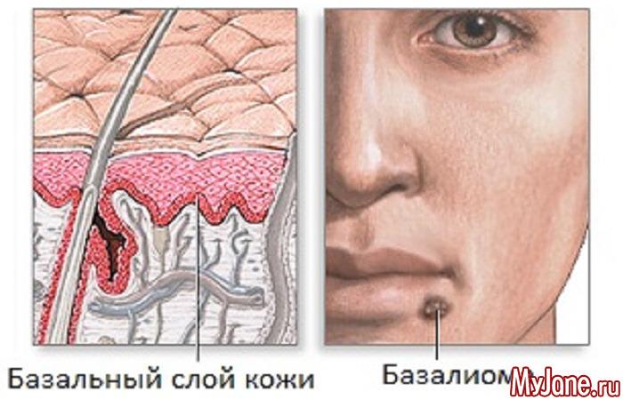 Базалиома кожи лица: причины, как ее лечить, прогноз, профилактика, фото