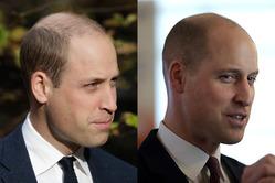 Принцу Уильяму пришлось сменить прическу