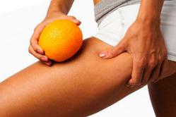 Владимир Яременко рассказал о том, каким образом можно справиться с эффектом «апельсиновой корки»