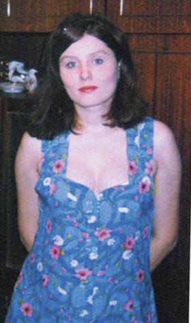 Вот так выглядела Юля до того как начала принимать «Неолам-гель»
